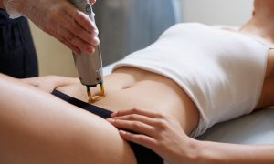 AZUR-laser-hair-removal-options-2