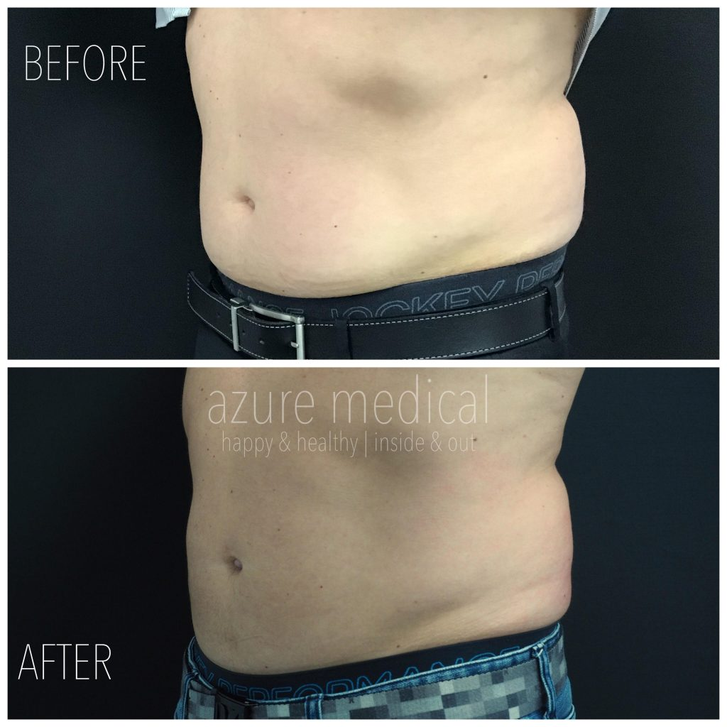 Male Stomach After Coolsculpting
