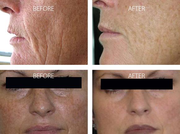 Omnilux Light skin rejuvenation cottesloe - omnilux cottesloe (1)