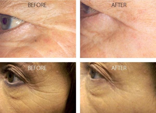 Omnilux Light skin rejuvenation cottesloe - omnilux cottesloe (2)