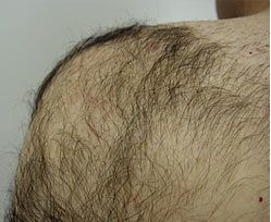 hair removal before 1