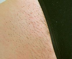 hair removal before 2