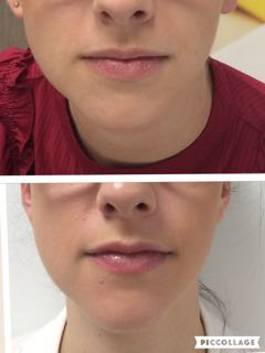 laser lip plumping perth - laser lip plumping cottesloe