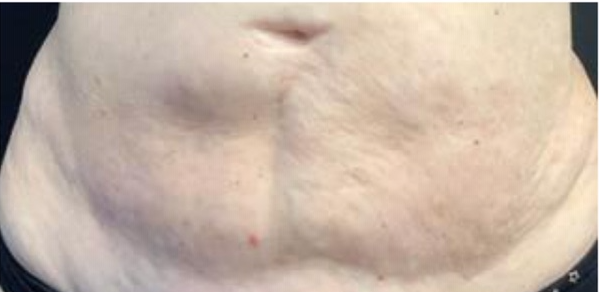micro needling after