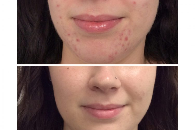 omnilux light treatment - led blue light treatment - acne treatment perth