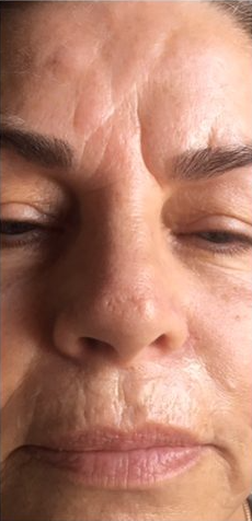wrinkle relaxers before