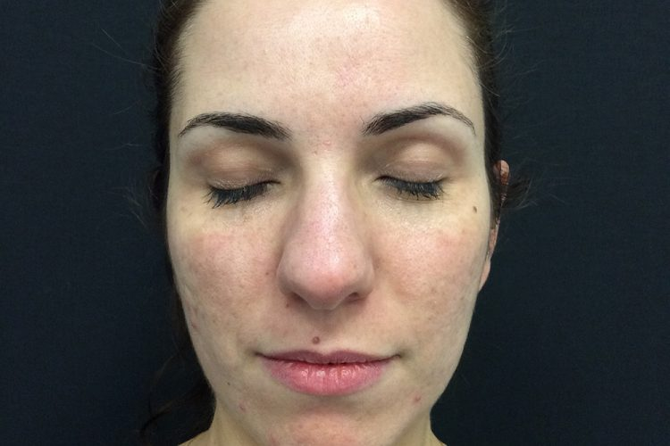 1. pre laser front - acne scarring treatment perth
