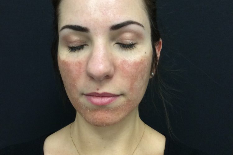 4. Day 3 Post Laser Front - acne scarring treatment perth
