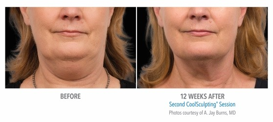 coolsculpting results on neck fat