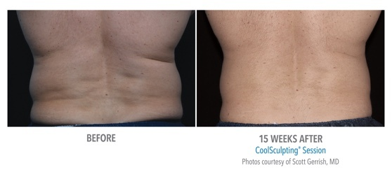 coolsculpting result on back