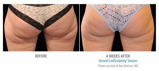 coolsculpting result on thighs