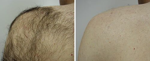 laser hair removeal cottesloe - laser hair reduction (1)