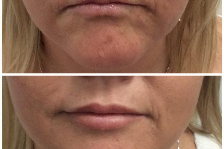 lip fillers perth - dermal fillers for face.