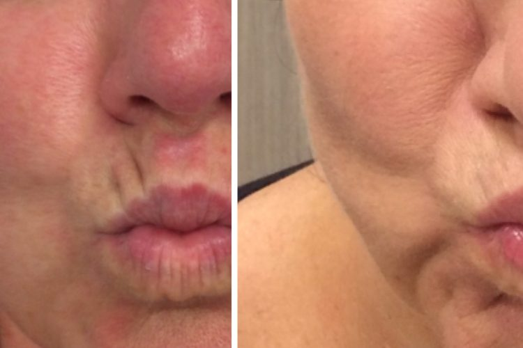 lip line fillers perth - dermal fillers for face..jpg