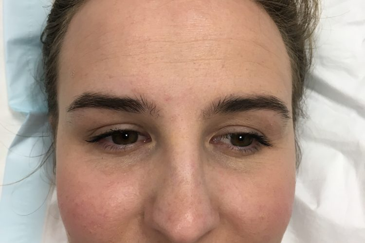 safe wrinkle relaxers perth - wrinkle relaxer perth (1)