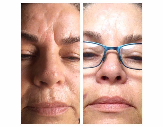 safe wrinkle relaxers perth - wrinkle relaxer perth (3)