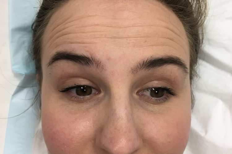safe wrinkle relaxers perth - wrinkle relaxer perth (5)