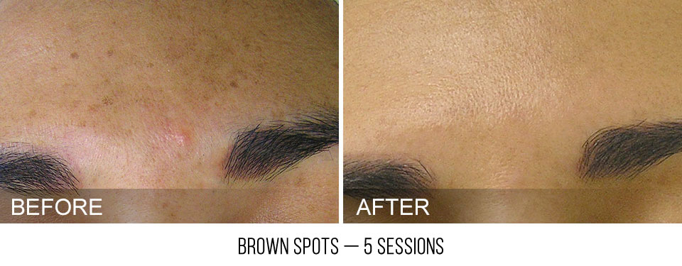 hydrafacial-before-after-BrownSpots-caption