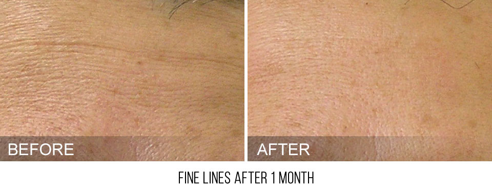 hydrafacial-before-after-FineLines-caption