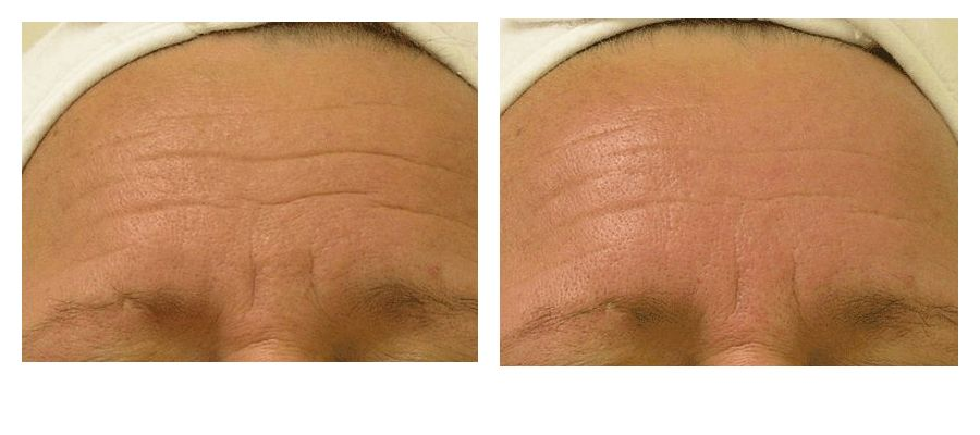 hydrafacial-before-after-Wrinkles-Large1