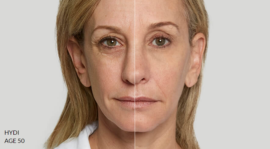 Sculptra treatment results - cottesloe clinic