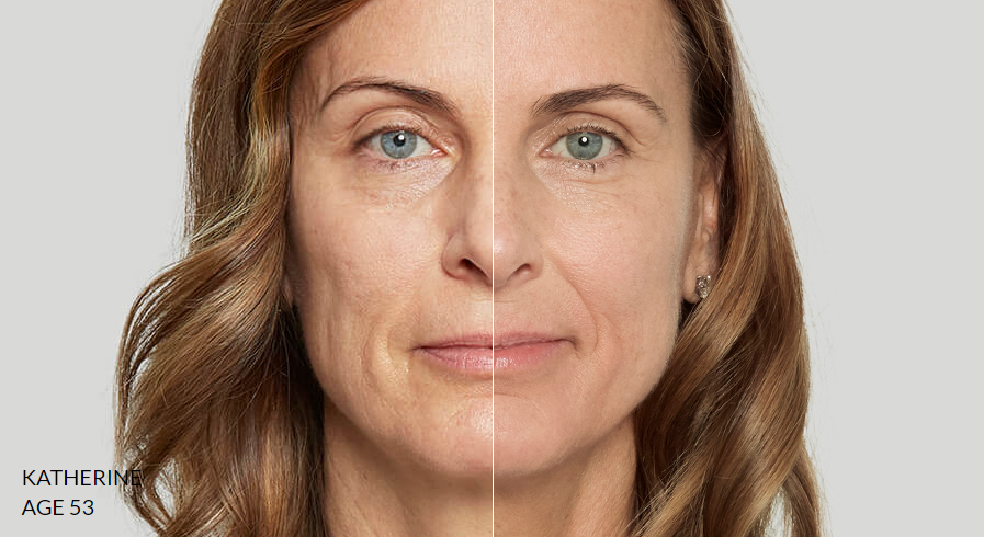 Sculptra treatment results - perth