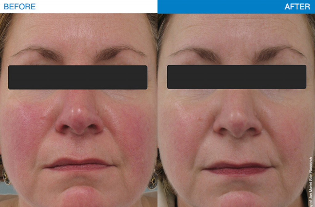 Rosacea treatment results using Jan Marini products.