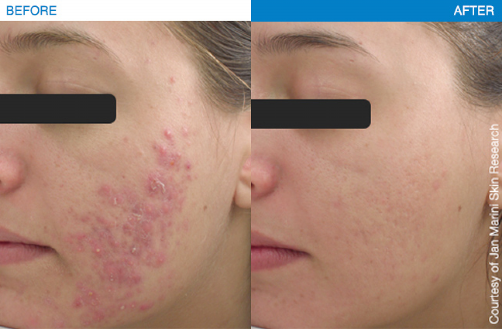 Acne Treatment results using Jan Marini products.