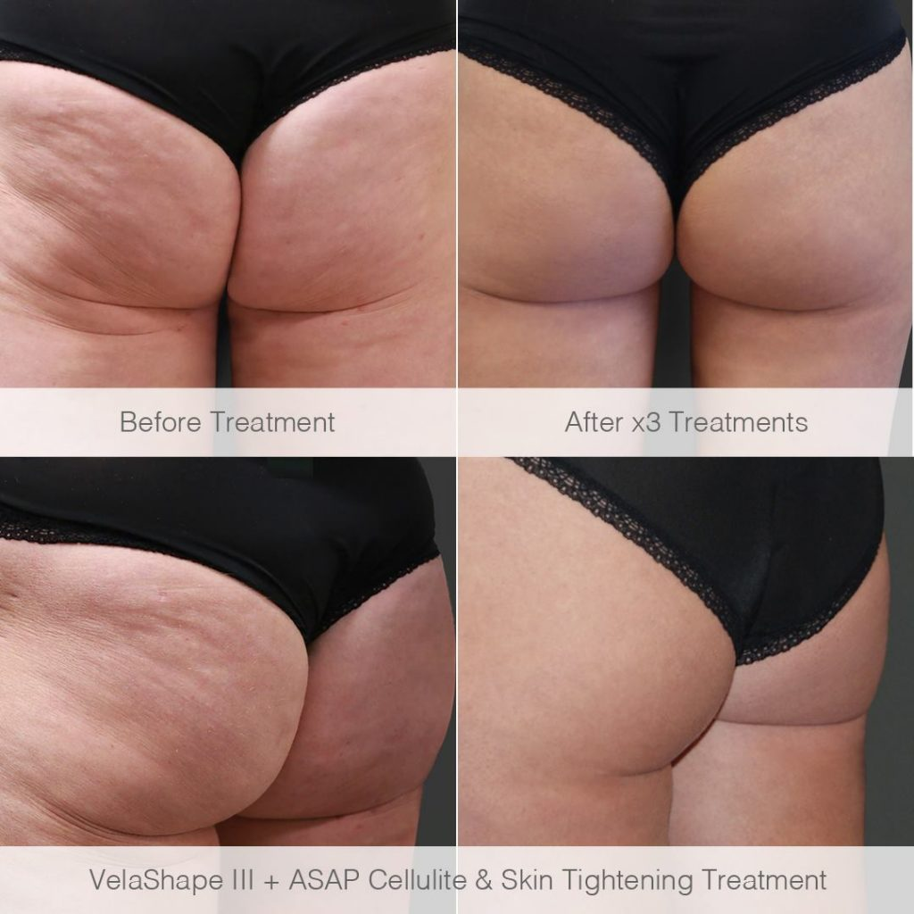 velashape 3 and asap cellulite and skin tightening treatment. before treatment shows skin with wrinkles and cellulite, after three treatments shows a smooth bottom with no cellulite.