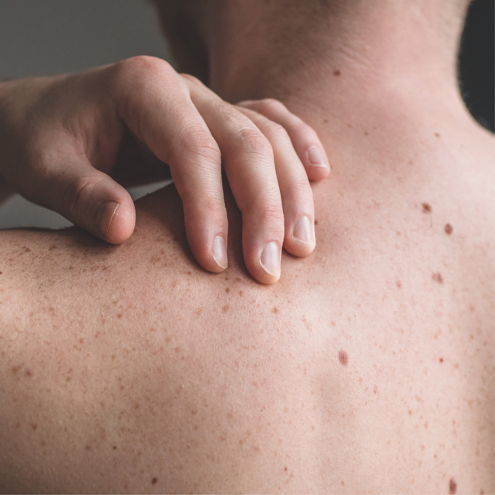man checking his back for freckles
